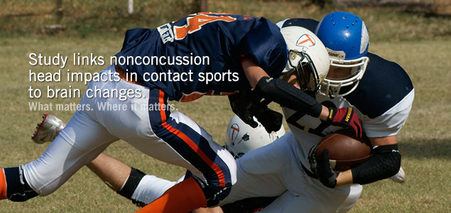 Study links nonconcussion head impacts in contact sports to brain changes and lower test scores.
